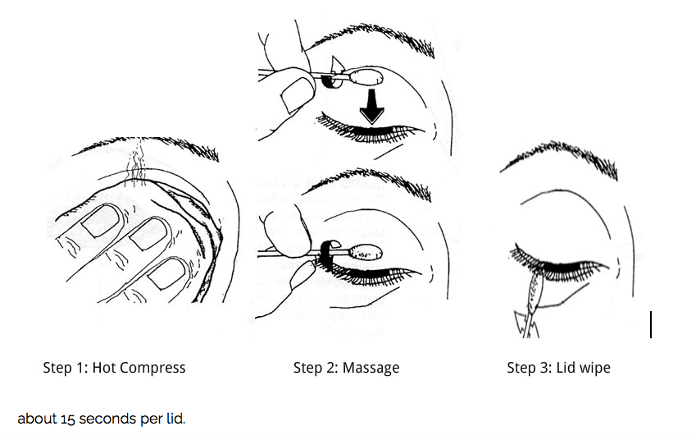 Øyelokkmassasje med Q-tips